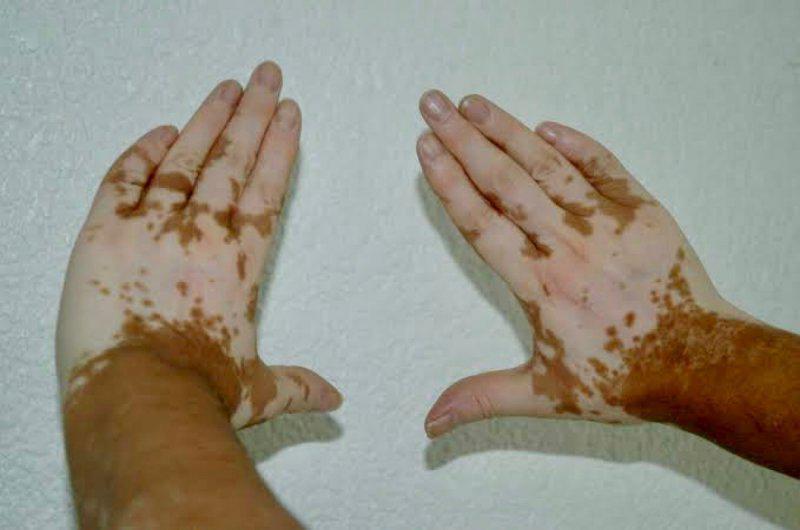 manos con vitiligio